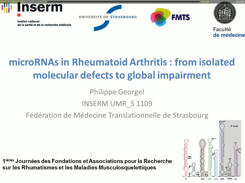 Anomalies spécifiques et globales des microARNs dans la polyarthrite rhumatoide